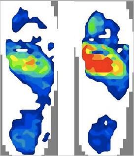 foot pressure scan